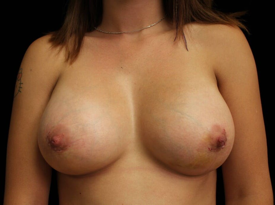 Breast Augmentation Gallery - Patient 39244182 - Image 2