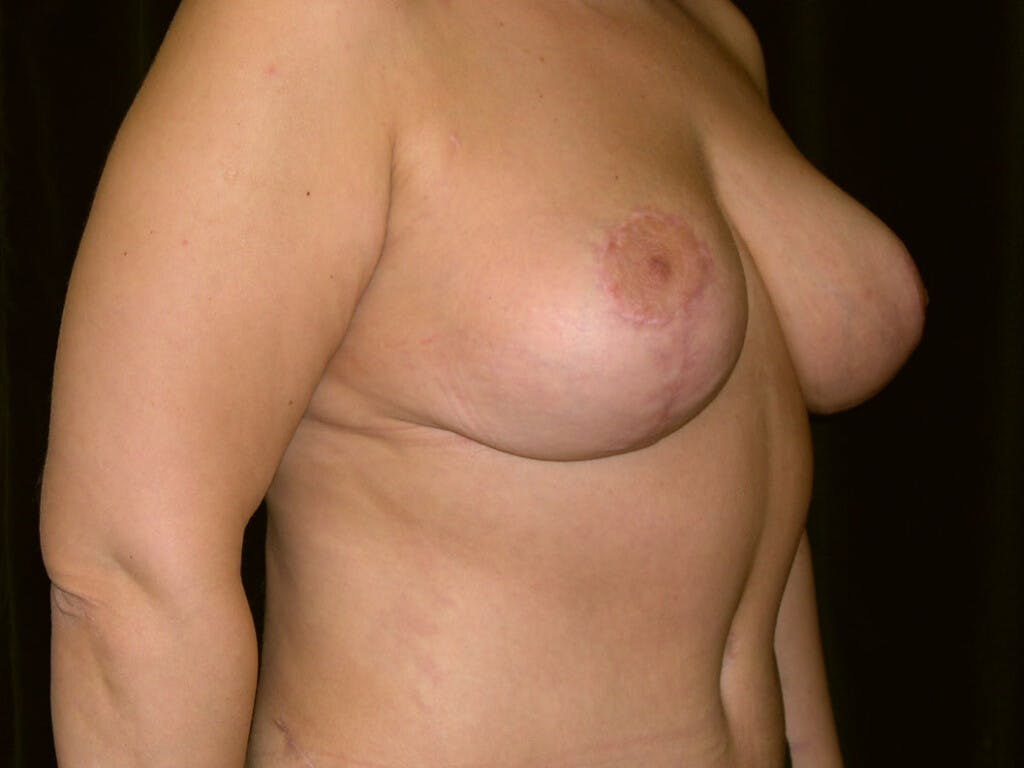 Breast Reduction T Incision Gallery - Patient 39244183 - Image 2