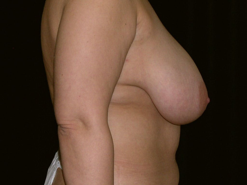 Breast Reduction T Incision Gallery - Patient 39244183 - Image 3