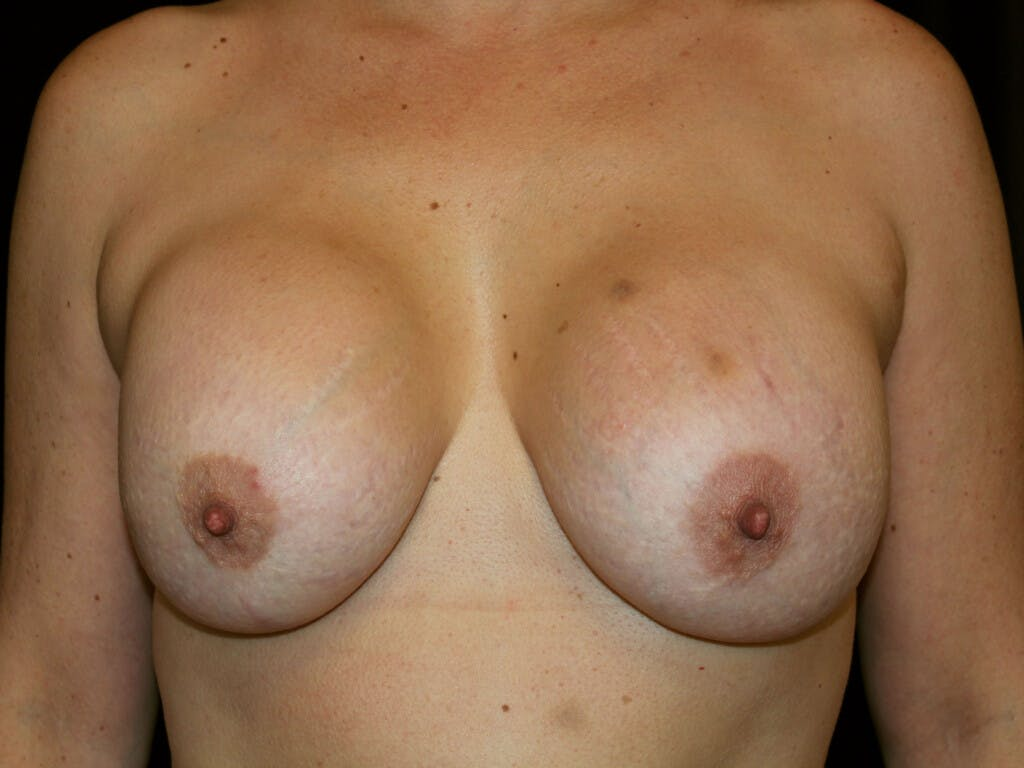 Revision Breast Surgery Gallery - Patient 39244186 - Image 1
