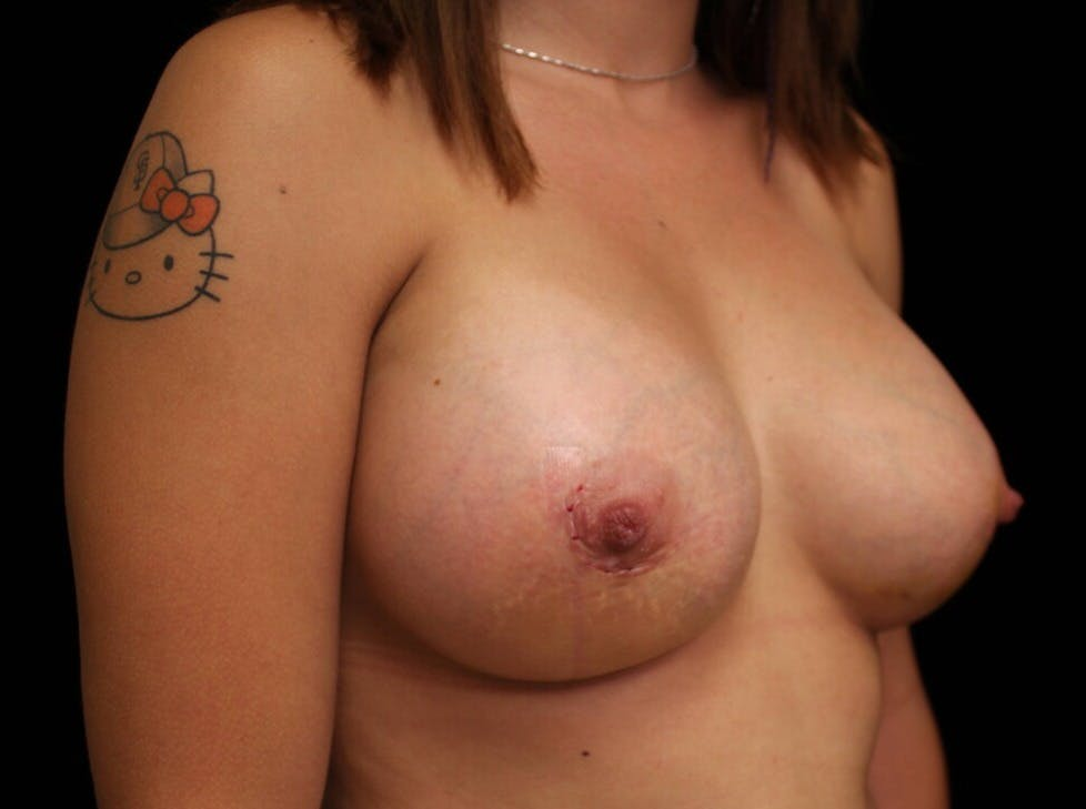 Breast Augmentation Gallery - Patient 39244182 - Image 4