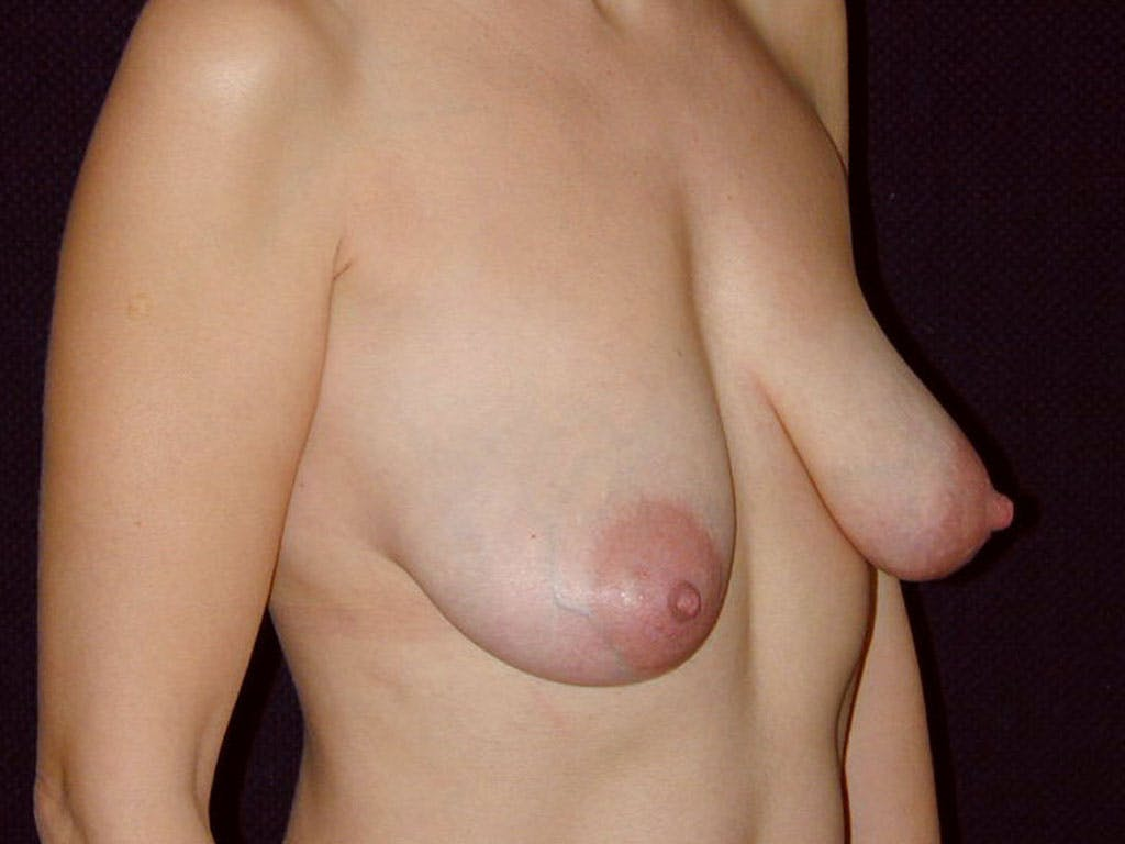 Vertical and Inverted T Breast Lift Gallery - Patient 39244185 - Image 1