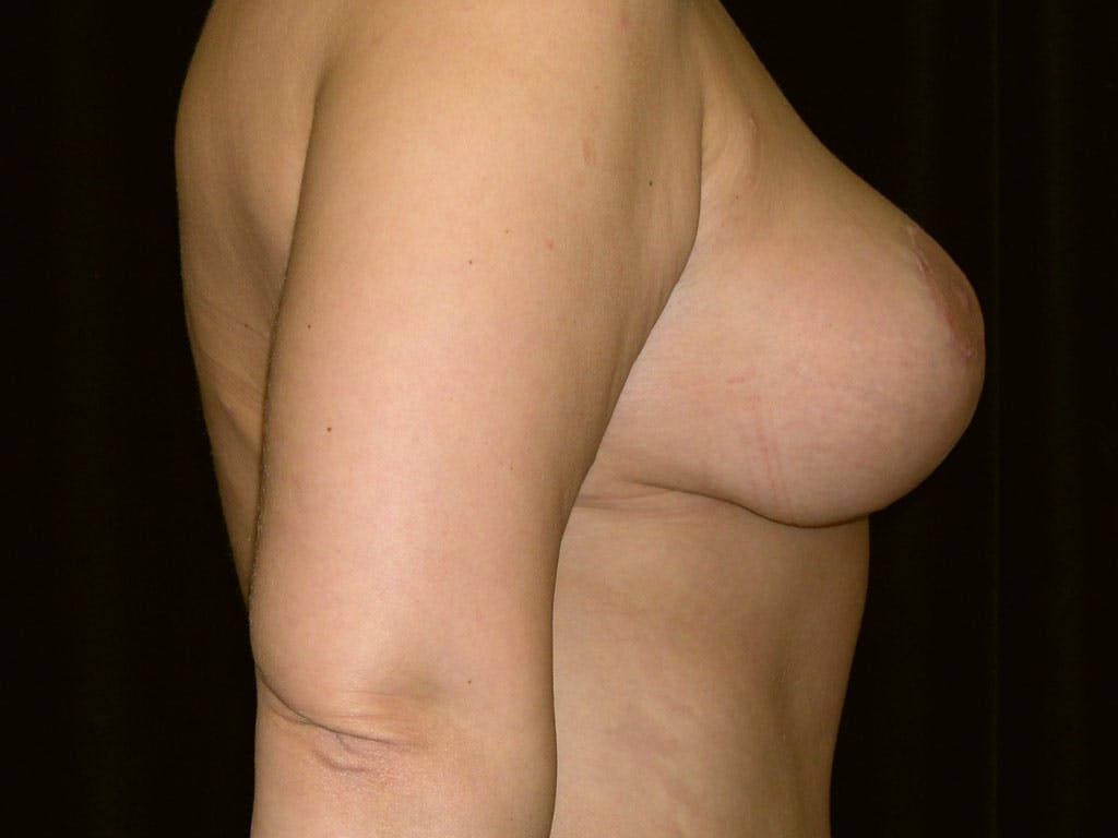 Breast Reduction T Incision Gallery - Patient 39244183 - Image 4