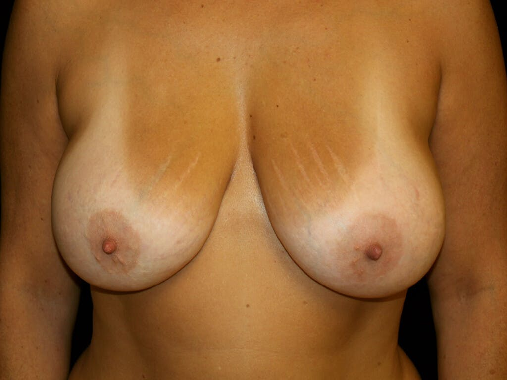 Revision Breast Surgery Gallery - Patient 39244186 - Image 2
