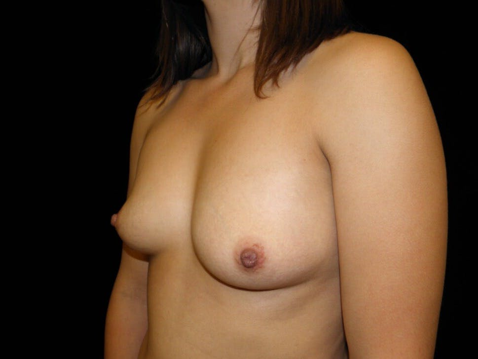 Breast Augmentation Gallery - Patient 39244182 - Image 5