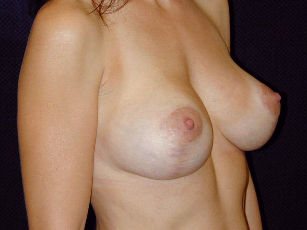 Vertical and Inverted T Breast Lift Gallery - Patient 39244185 - Image 2