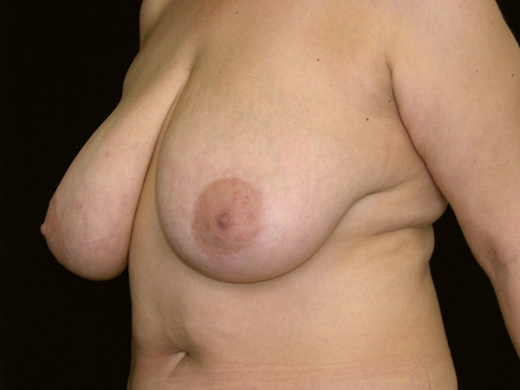 Breast Reduction T Incision Gallery - Patient 39244183 - Image 5