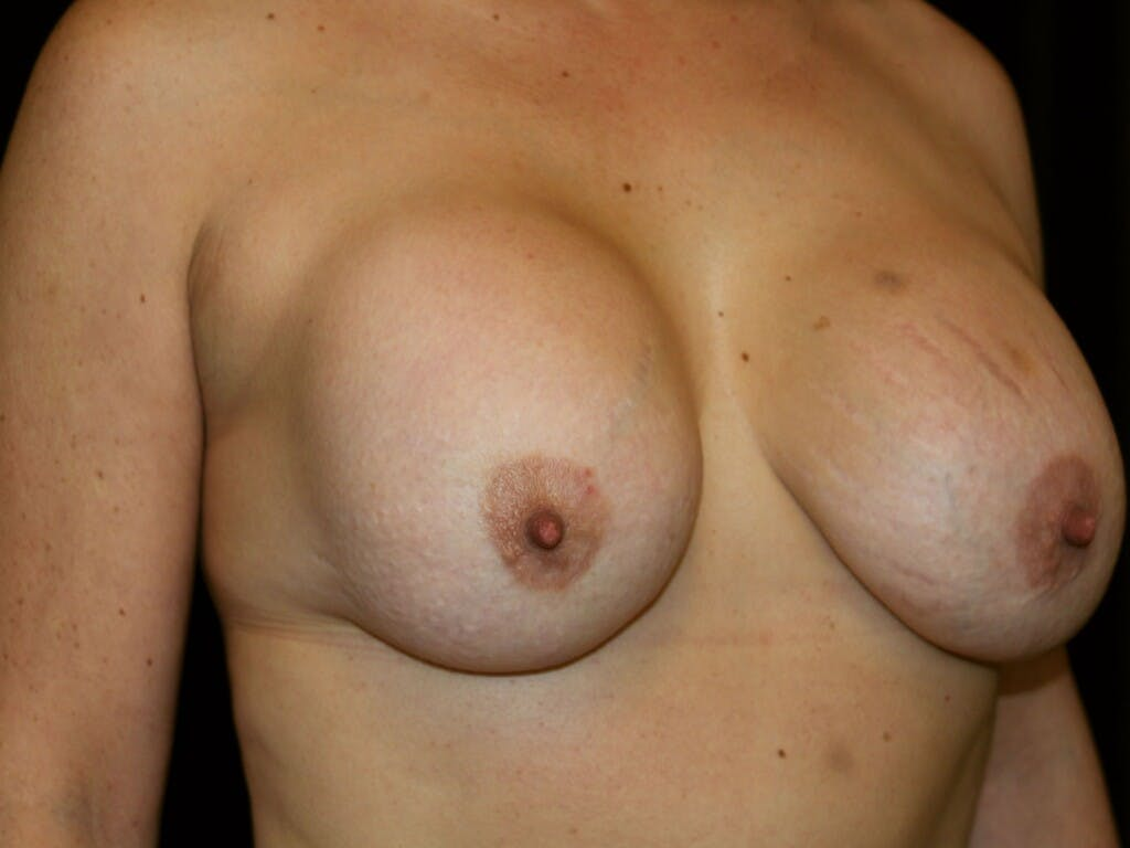 Revision Breast Surgery Gallery - Patient 39244186 - Image 3
