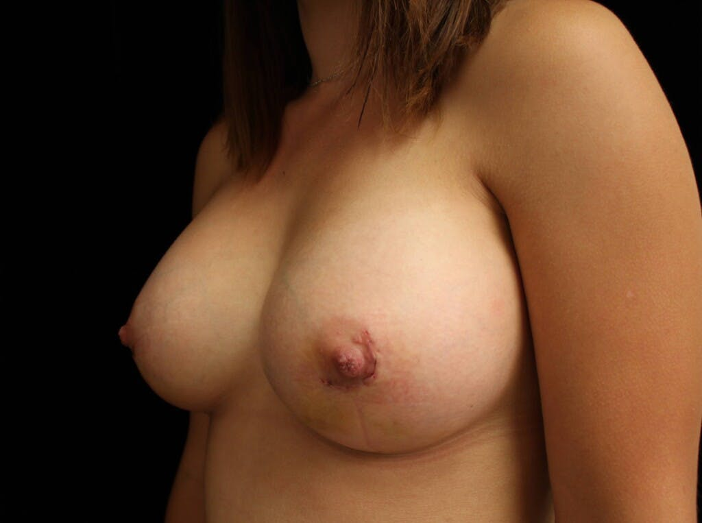 Breast Augmentation Gallery - Patient 39244182 - Image 6