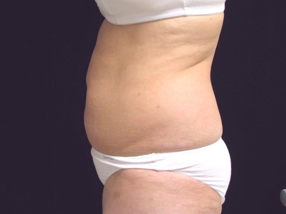 Tummy Tuck Gallery - Patient 39244184 - Image 9