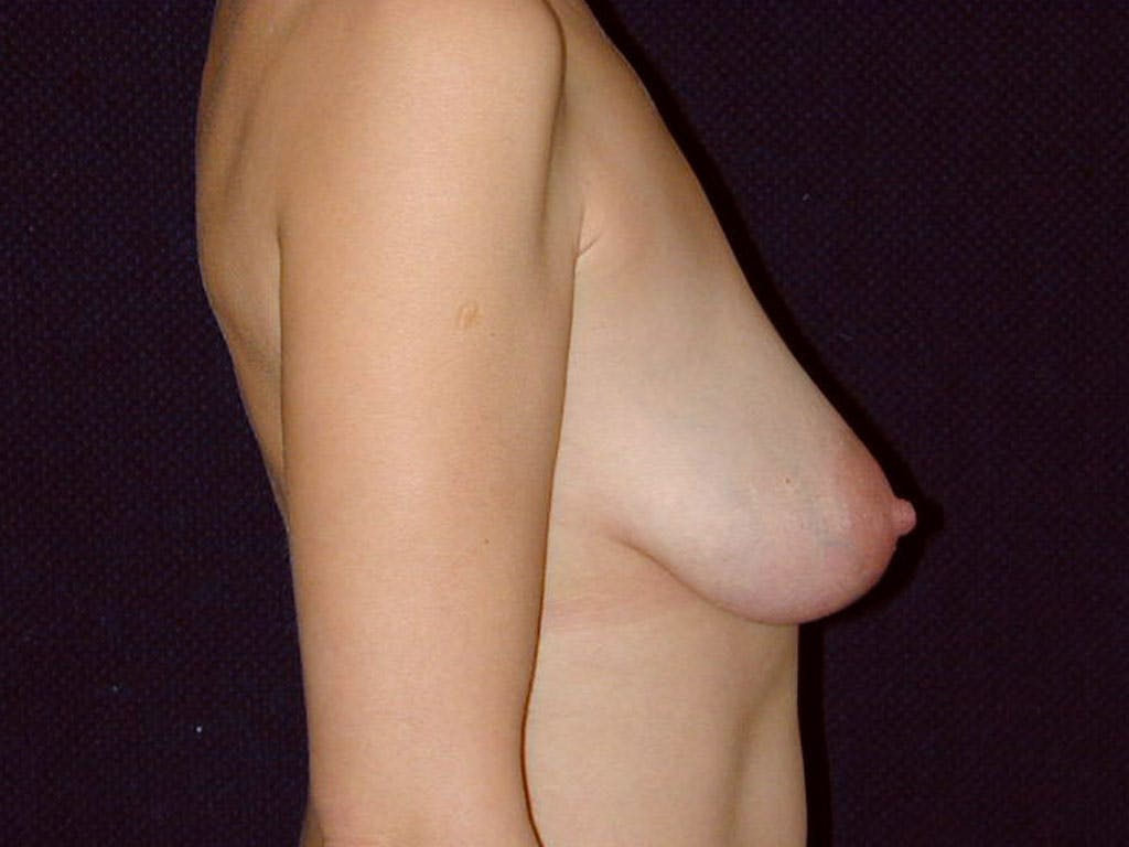 Vertical and Inverted T Breast Lift Gallery - Patient 39244185 - Image 3