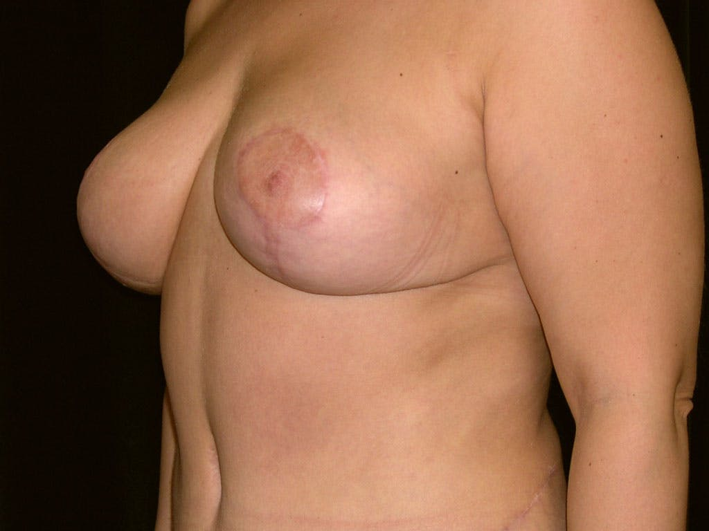 Breast Reduction T Incision Gallery - Patient 39244183 - Image 6