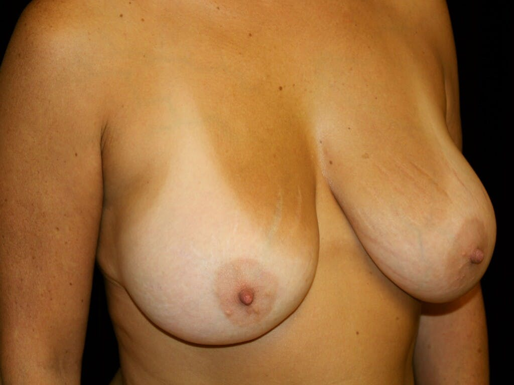 Revision Breast Surgery Gallery - Patient 39244186 - Image 4