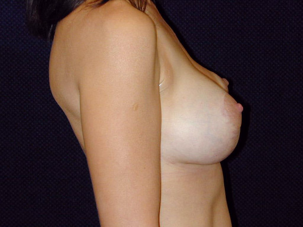 Vertical and Inverted T Breast Lift Gallery - Patient 39244185 - Image 4