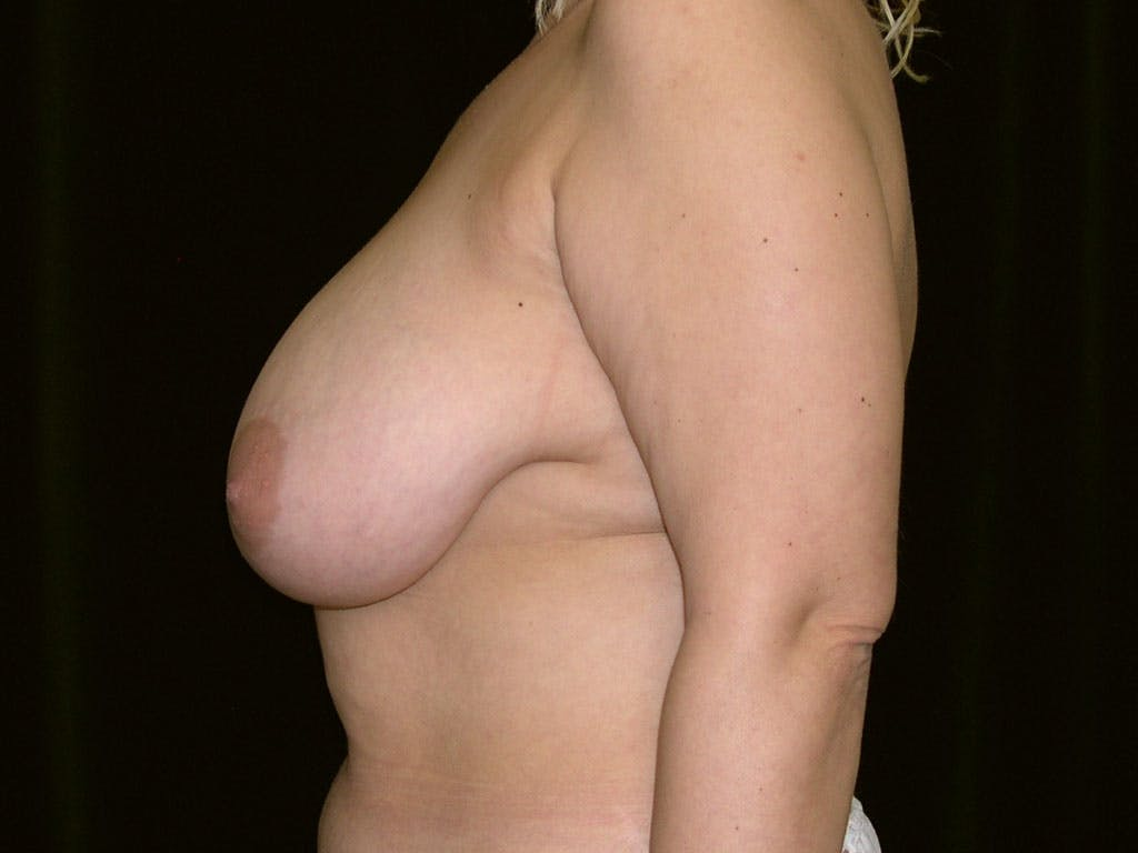 Breast Reduction T Incision Gallery - Patient 39244183 - Image 7