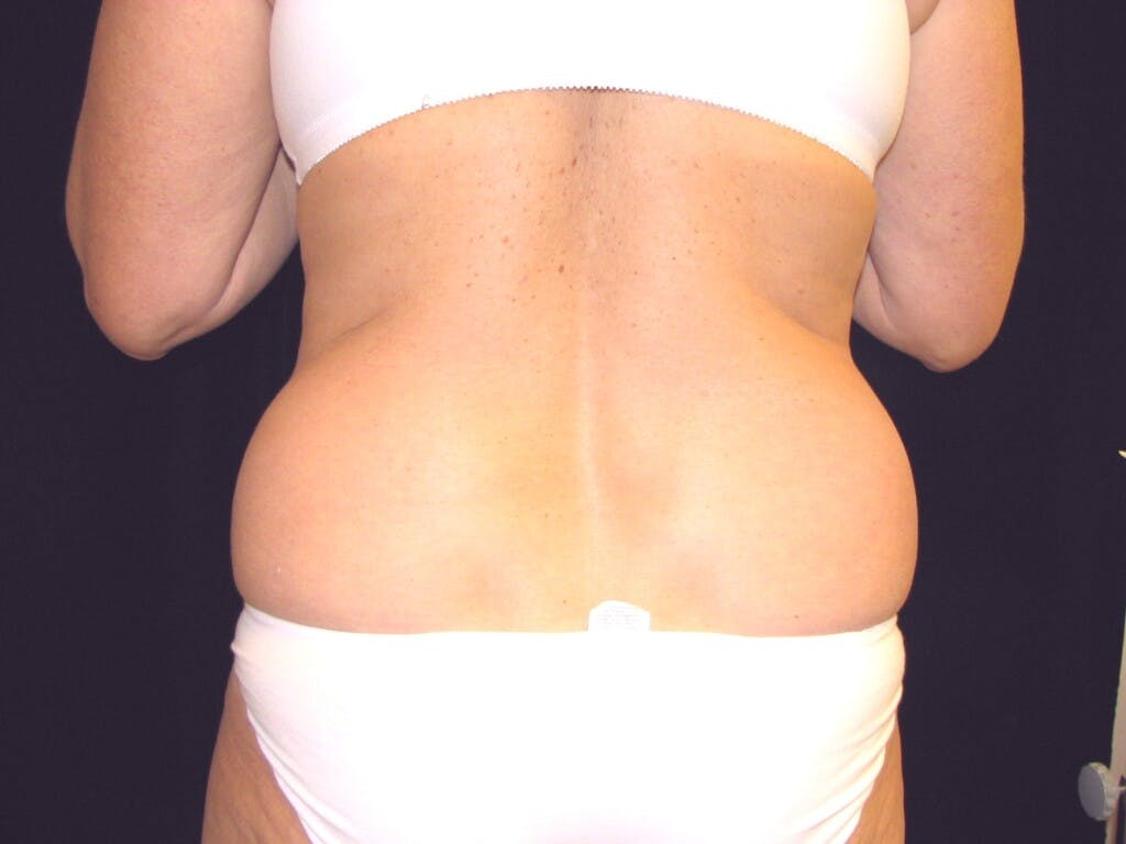 Tummy Tuck Gallery - Patient 39244184 - Image 11