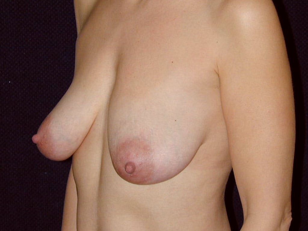 Vertical and Inverted T Breast Lift Gallery - Patient 39244185 - Image 5