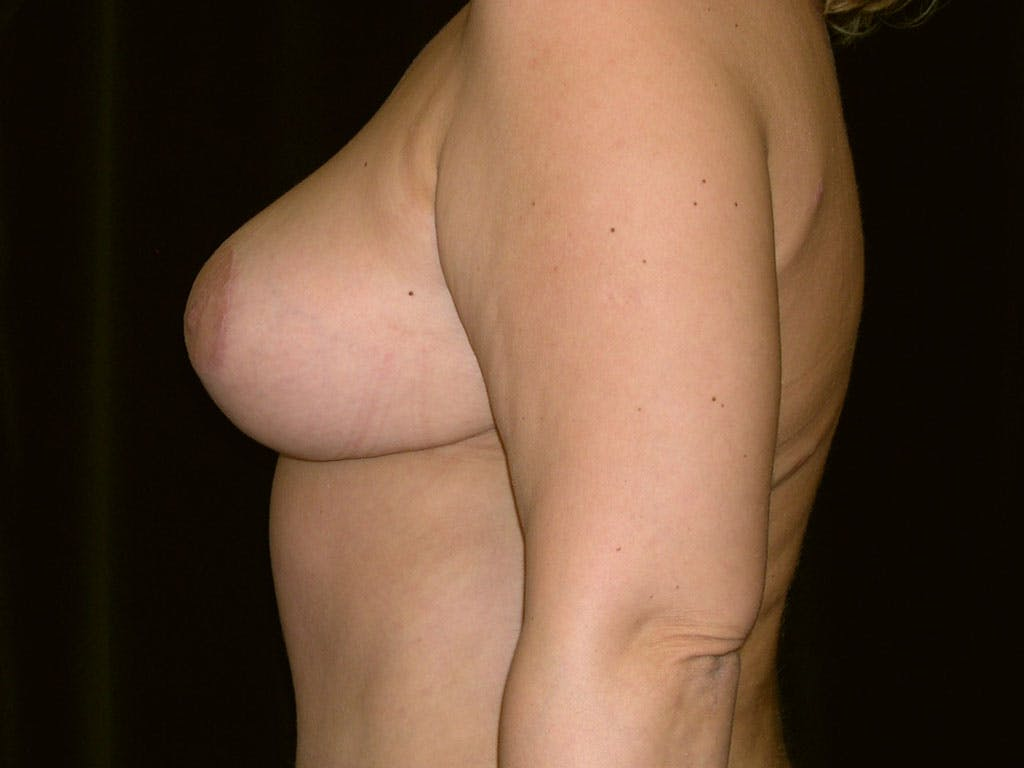 Breast Reduction T Incision Gallery - Patient 39244183 - Image 8