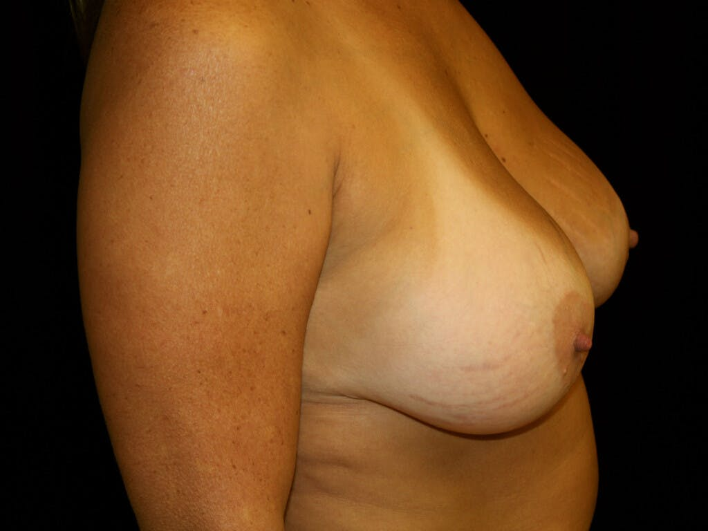 Revision Breast Surgery Gallery - Patient 39244186 - Image 6
