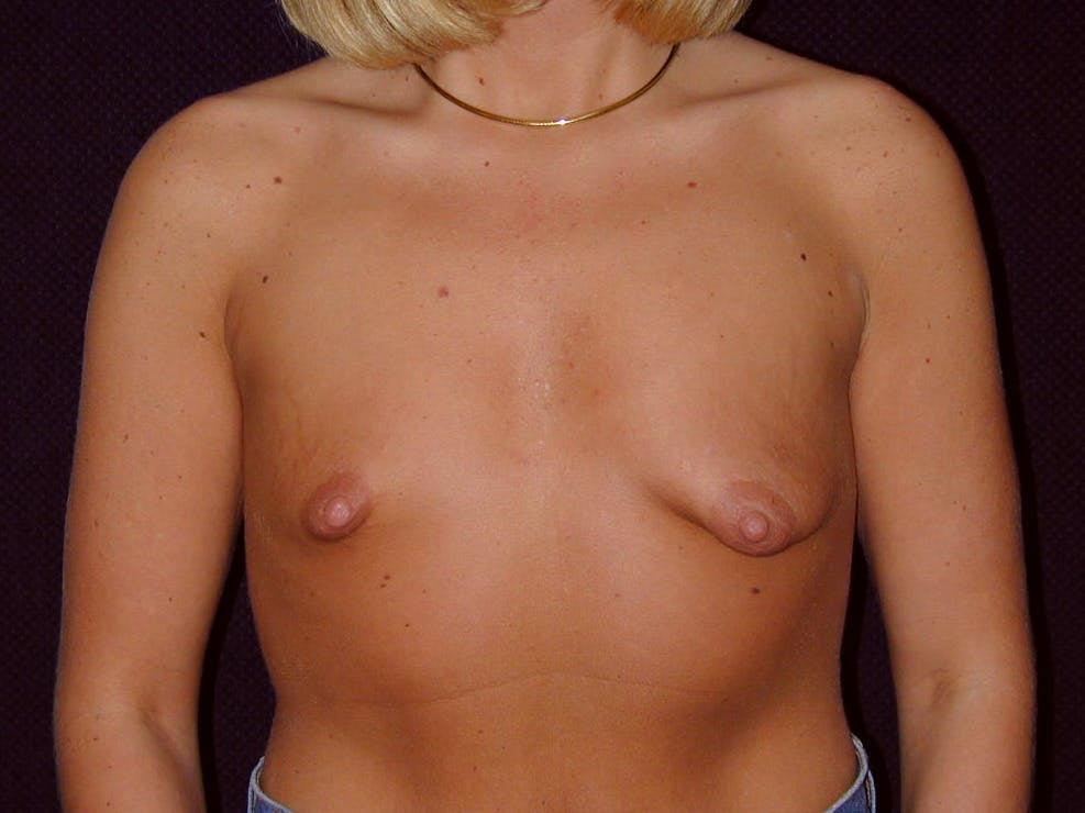Breast Augmentation Gallery - Patient 39244188 - Image 1