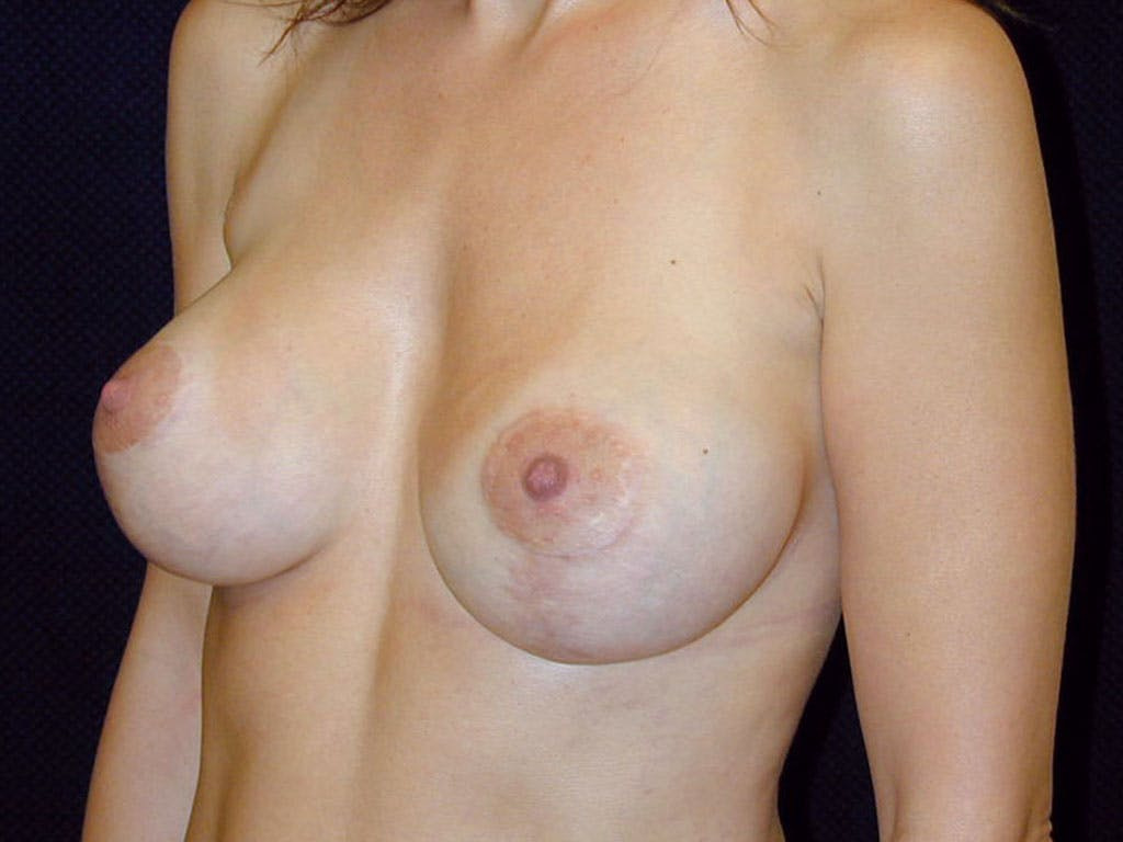 Vertical and Inverted T Breast Lift Gallery - Patient 39244185 - Image 6