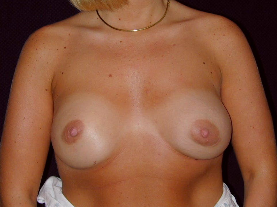 Breast Augmentation Gallery - Patient 39244188 - Image 2