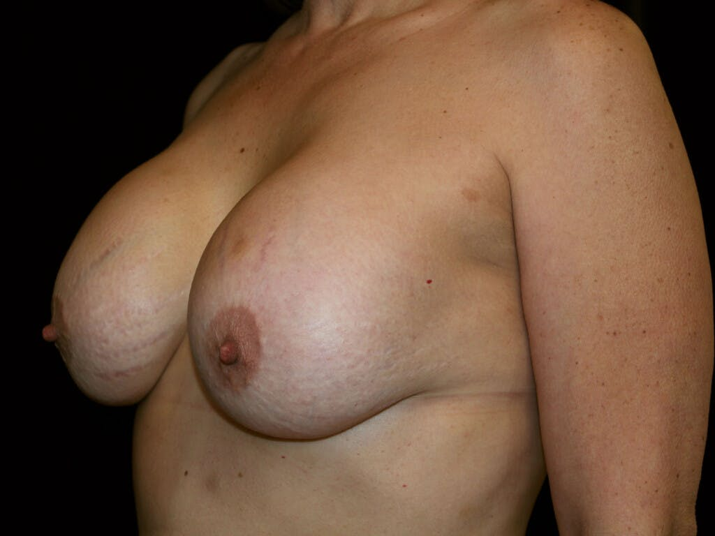 Revision Breast Surgery Gallery - Patient 39244186 - Image 7