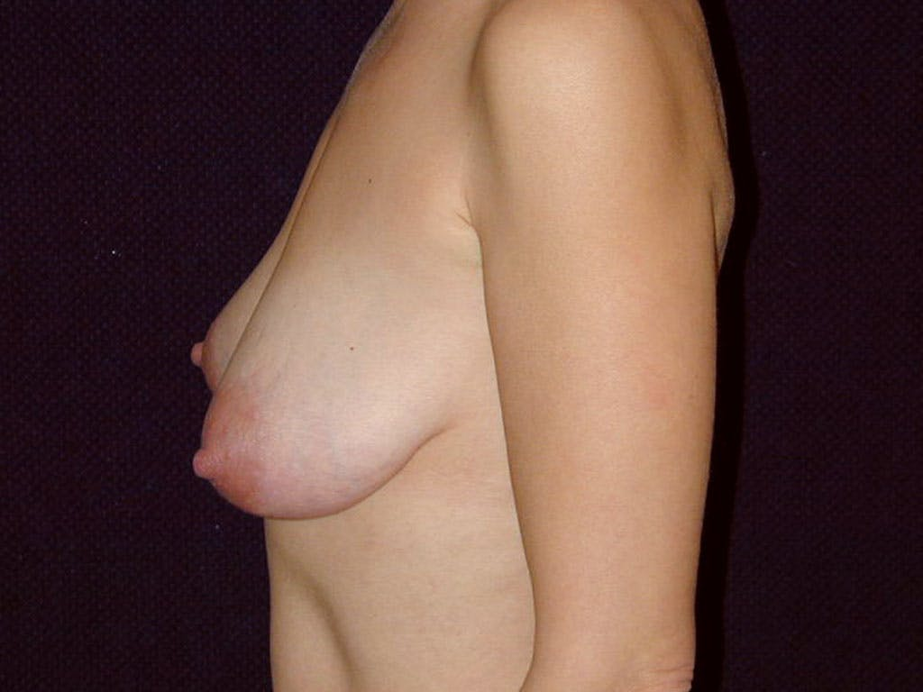 Vertical and Inverted T Breast Lift Gallery - Patient 39244185 - Image 7