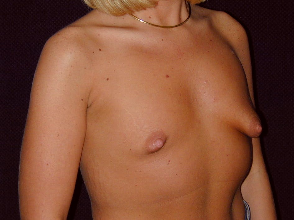 Breast Augmentation Gallery - Patient 39244188 - Image 3
