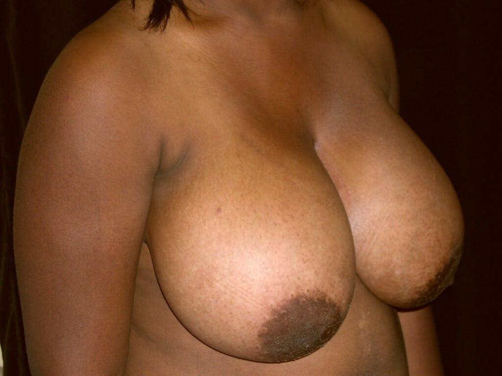 Breast Reduction T Incision Gallery - Patient 39244187 - Image 1