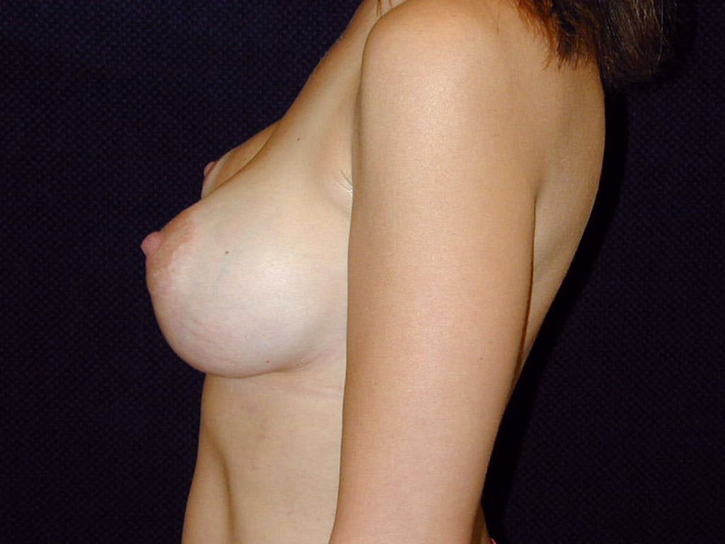 Vertical and Inverted T Breast Lift Gallery - Patient 39244185 - Image 8