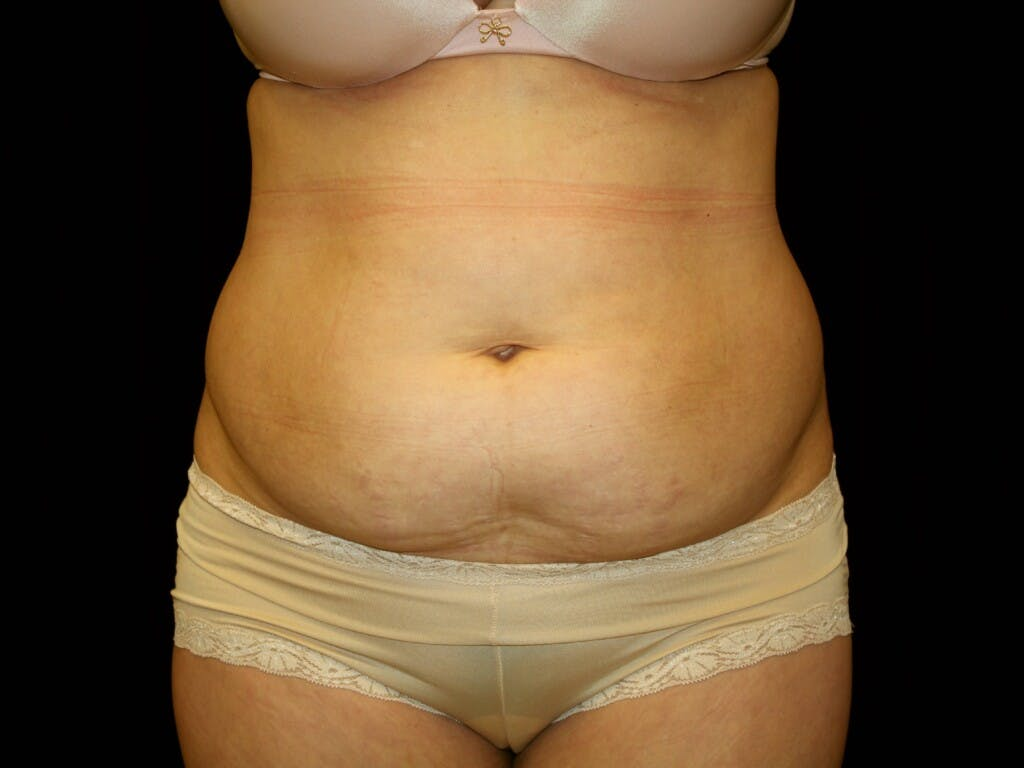 Tummy Tuck Gallery - Patient 39244189 - Image 1