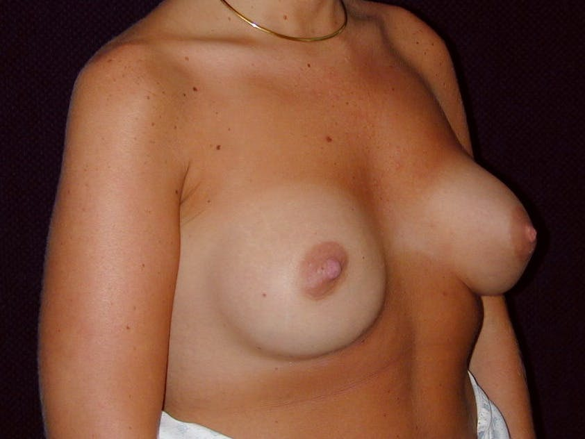 Breast Augmentation Gallery - Patient 39244188 - Image 4