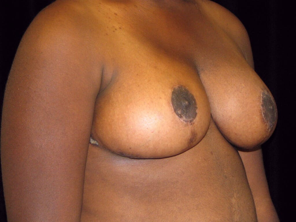 Breast Reduction T Incision Gallery - Patient 39244187 - Image 2