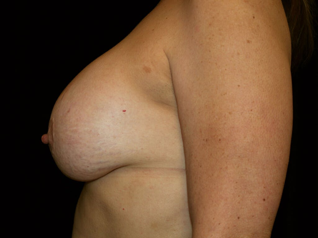 Revision Breast Surgery Gallery - Patient 39244186 - Image 9