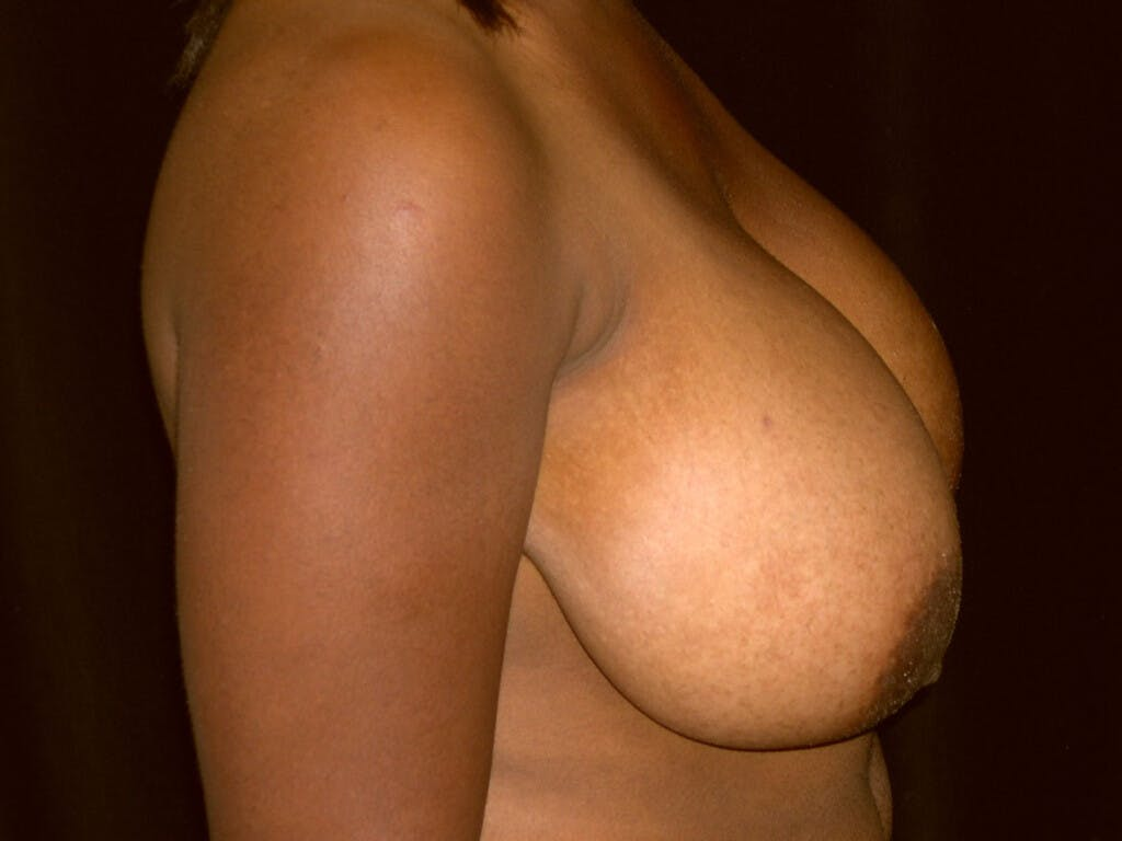 Breast Reduction T Incision Gallery - Patient 39244187 - Image 3
