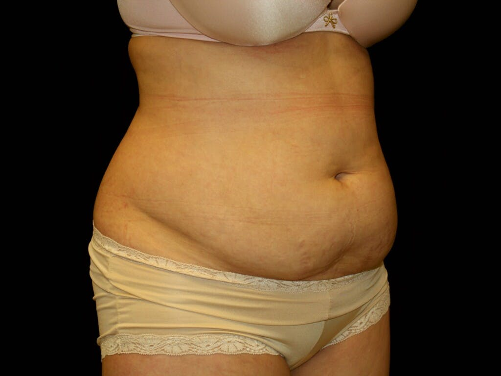 Tummy Tuck Gallery - Patient 39244189 - Image 3