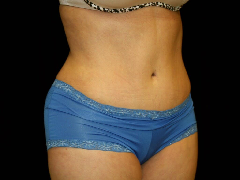 Tummy Tuck Gallery - Patient 39244189 - Image 4
