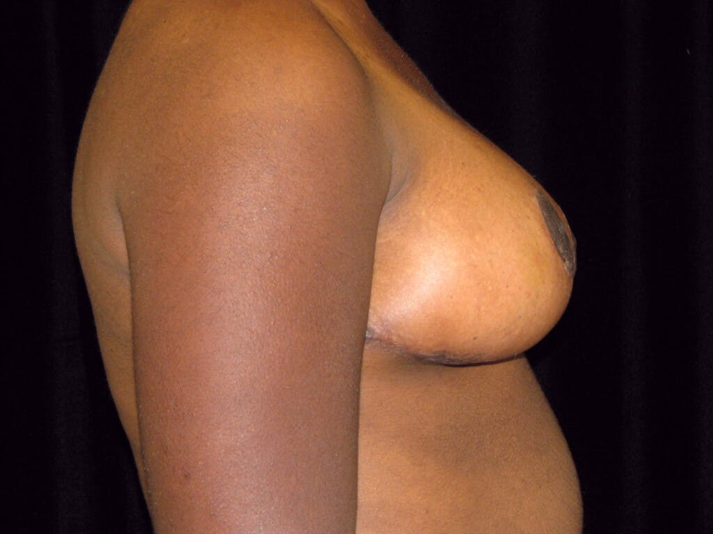 Breast Reduction T Incision Gallery - Patient 39244187 - Image 4