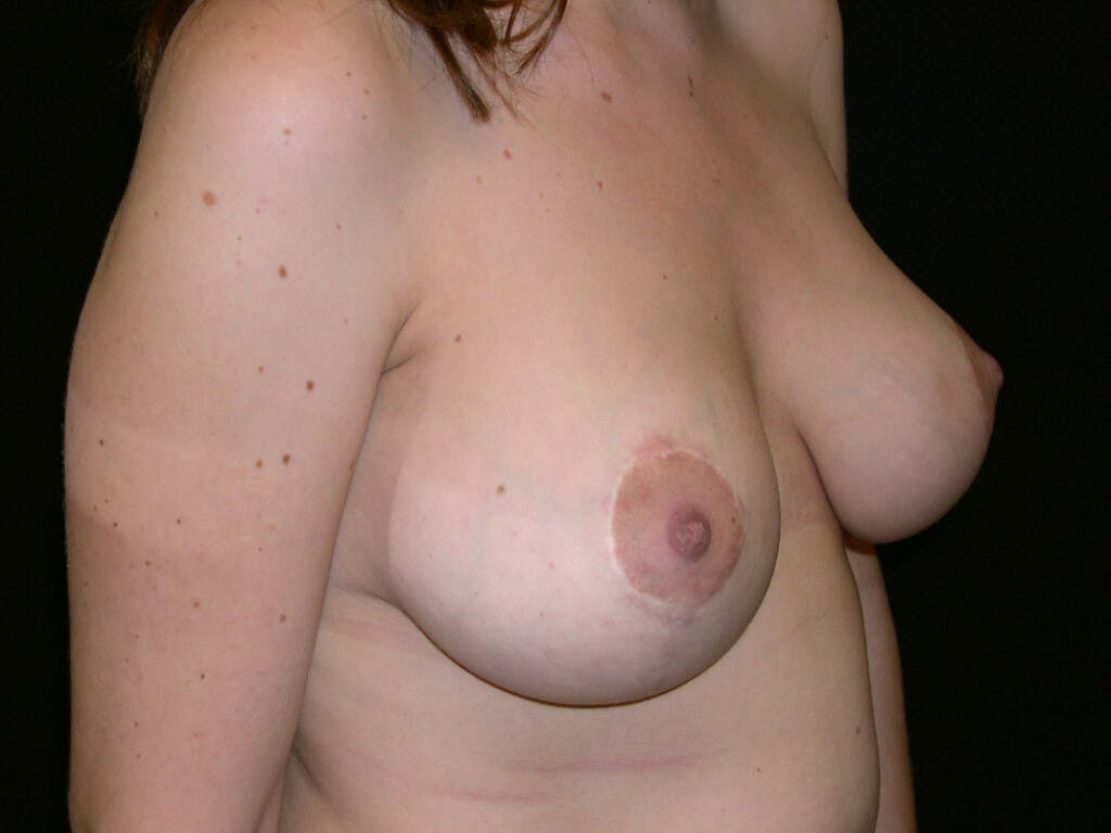 Vertical and Inverted T Breast Lift Gallery - Patient 39244190 - Image 2