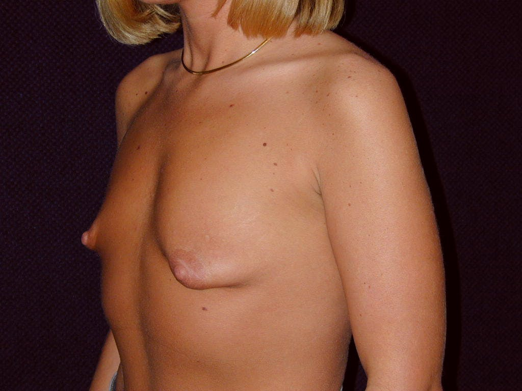 Breast Augmentation Gallery - Patient 39244188 - Image 7