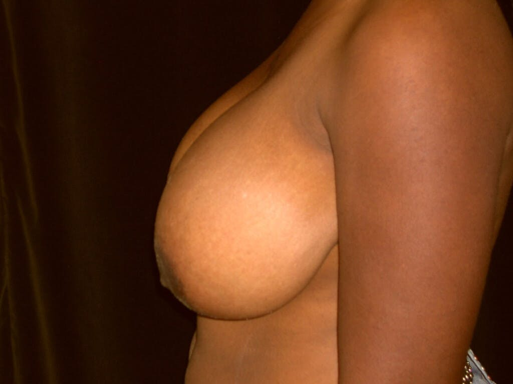Breast Reduction T Incision Gallery - Patient 39244187 - Image 5