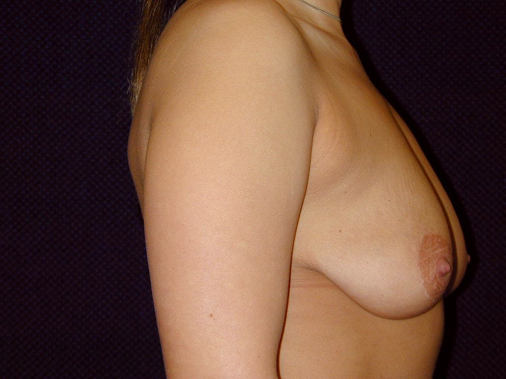 Vertical and Inverted T Breast Lift Gallery - Patient 39244190 - Image 3