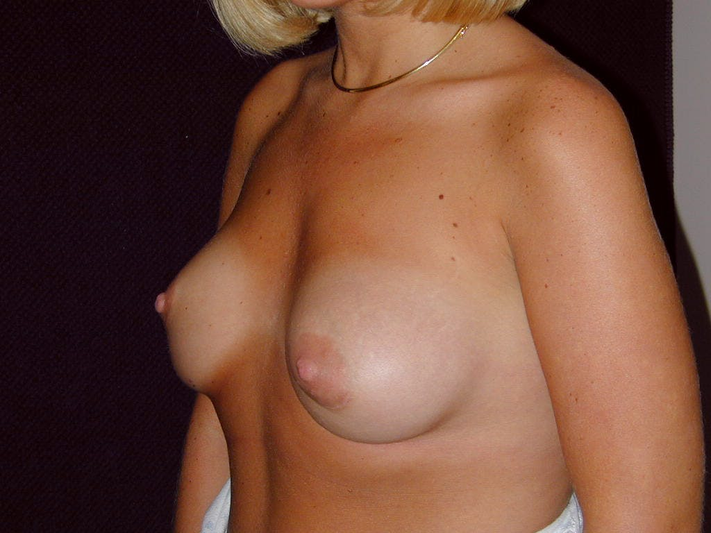 Breast Augmentation Gallery - Patient 39244188 - Image 8