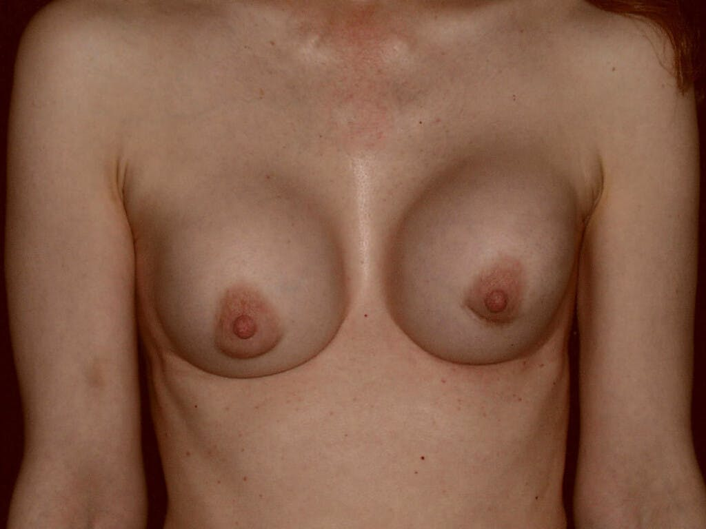Revision Breast Surgery Gallery - Patient 39244192 - Image 1
