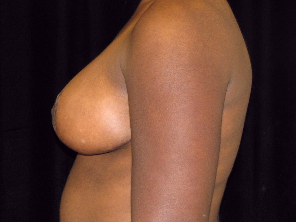 Breast Reduction T Incision Gallery - Patient 39244187 - Image 6