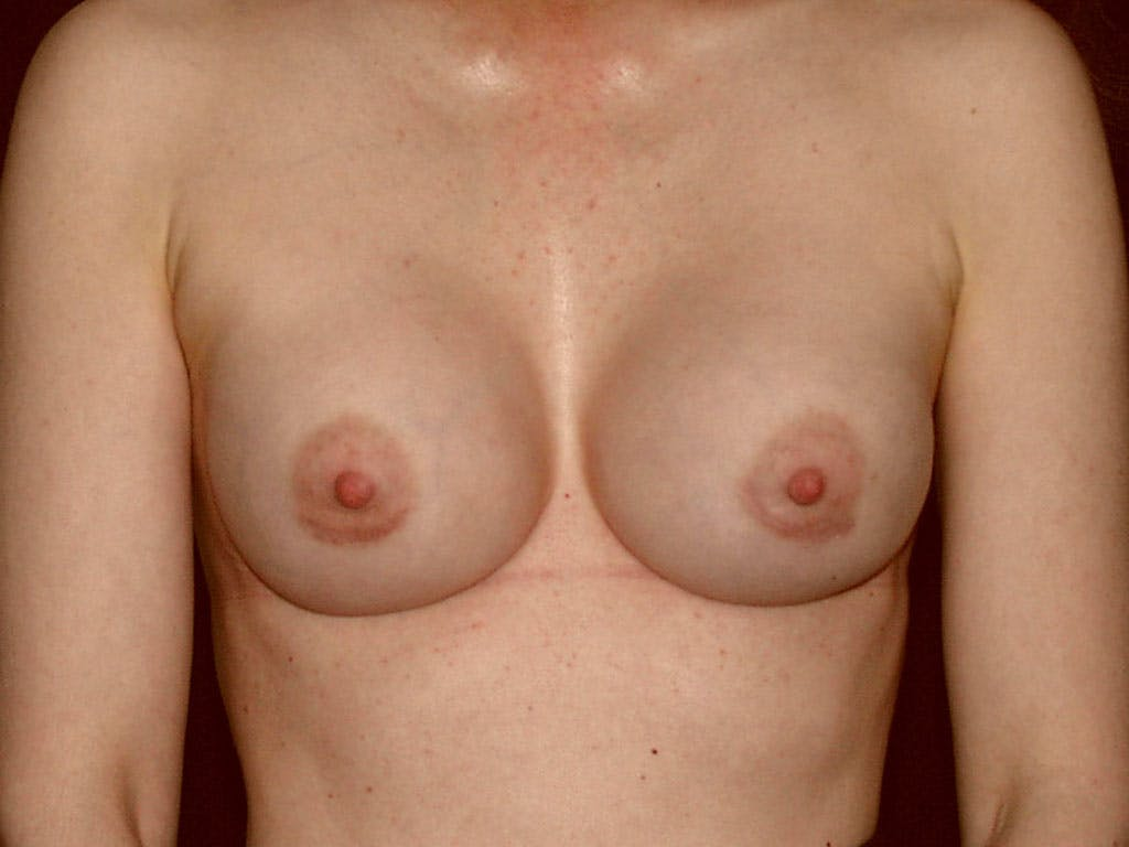 Revision Breast Surgery Gallery - Patient 39244192 - Image 2