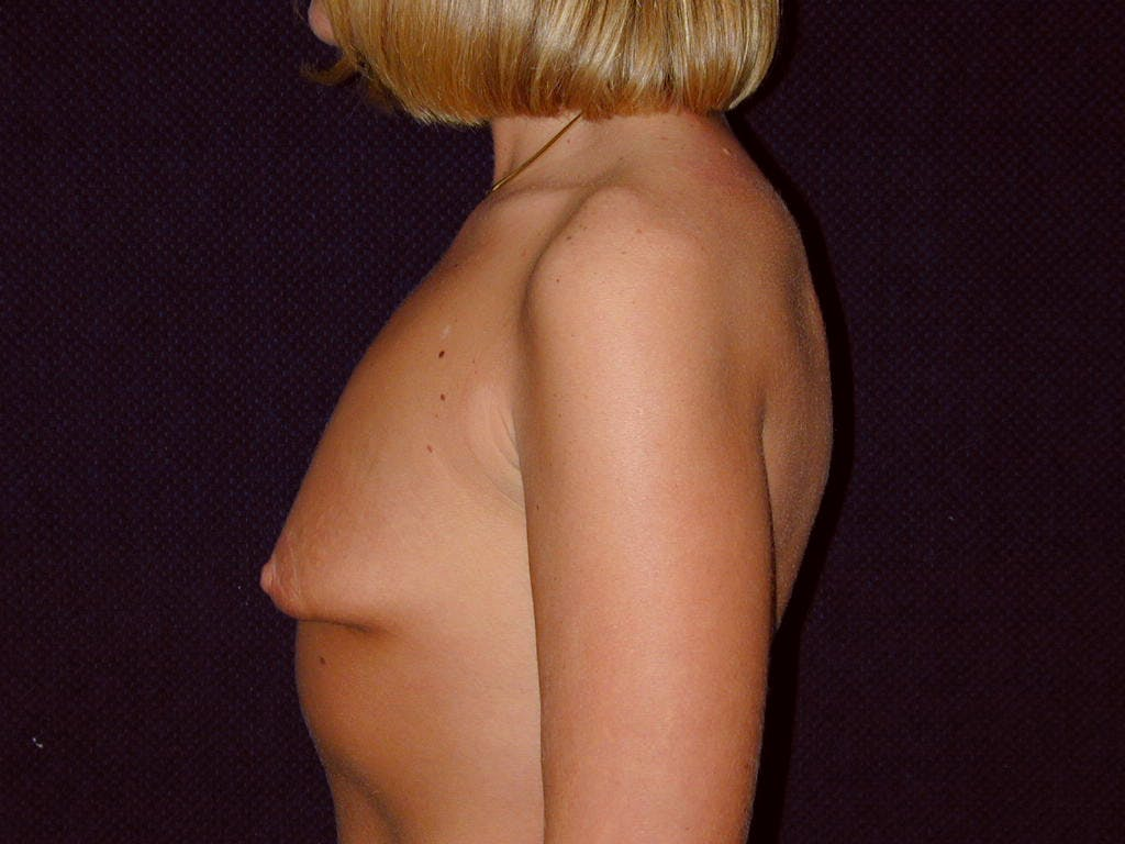 Breast Augmentation Gallery - Patient 39244188 - Image 9