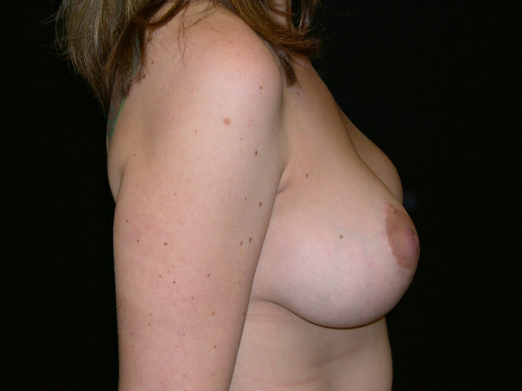 Vertical and Inverted T Breast Lift Gallery - Patient 39244190 - Image 4