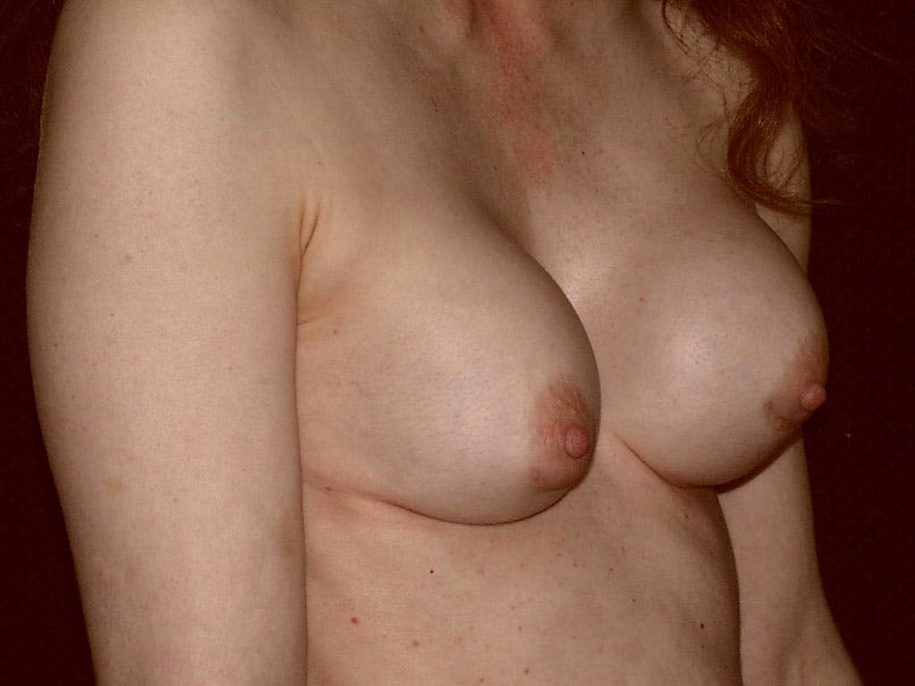 Revision Breast Surgery Gallery - Patient 39244192 - Image 3